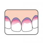 Результат применения индикатора зубного налета TePe Plaq Search Tablet